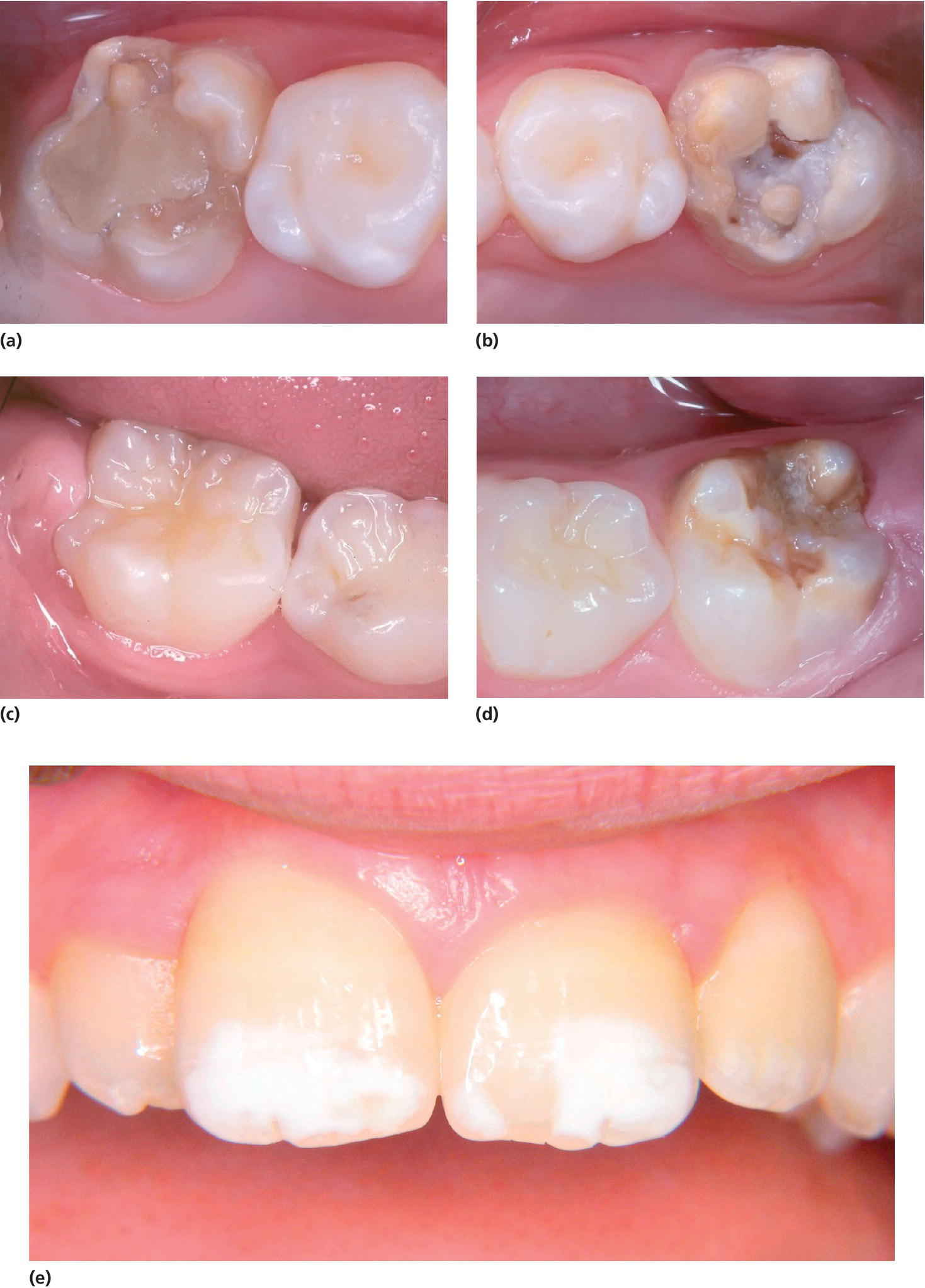 Photos of molar–incisor hypomineralization in 8‐year‐old. They display 16 with a defective restoration, 26 with disintegrated enamel and caries, 46 healthy, 36 disintegrated enamel, and demarcated opacitie.