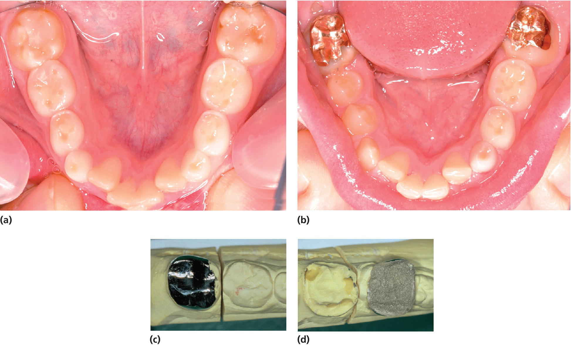 4 Photos displaying dentition with hypomineralized permanent first molars with opacities, posteruptive enamel breakdown along the margins of composite fillings and treatment with cast‐gold copings.