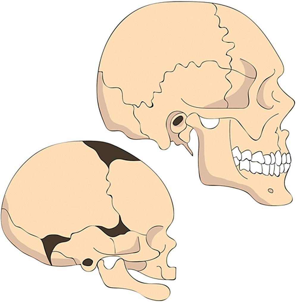 Illustration of the changes in proportions of the human head. It features an infant skull (bottom left) and an adult skull (top right).