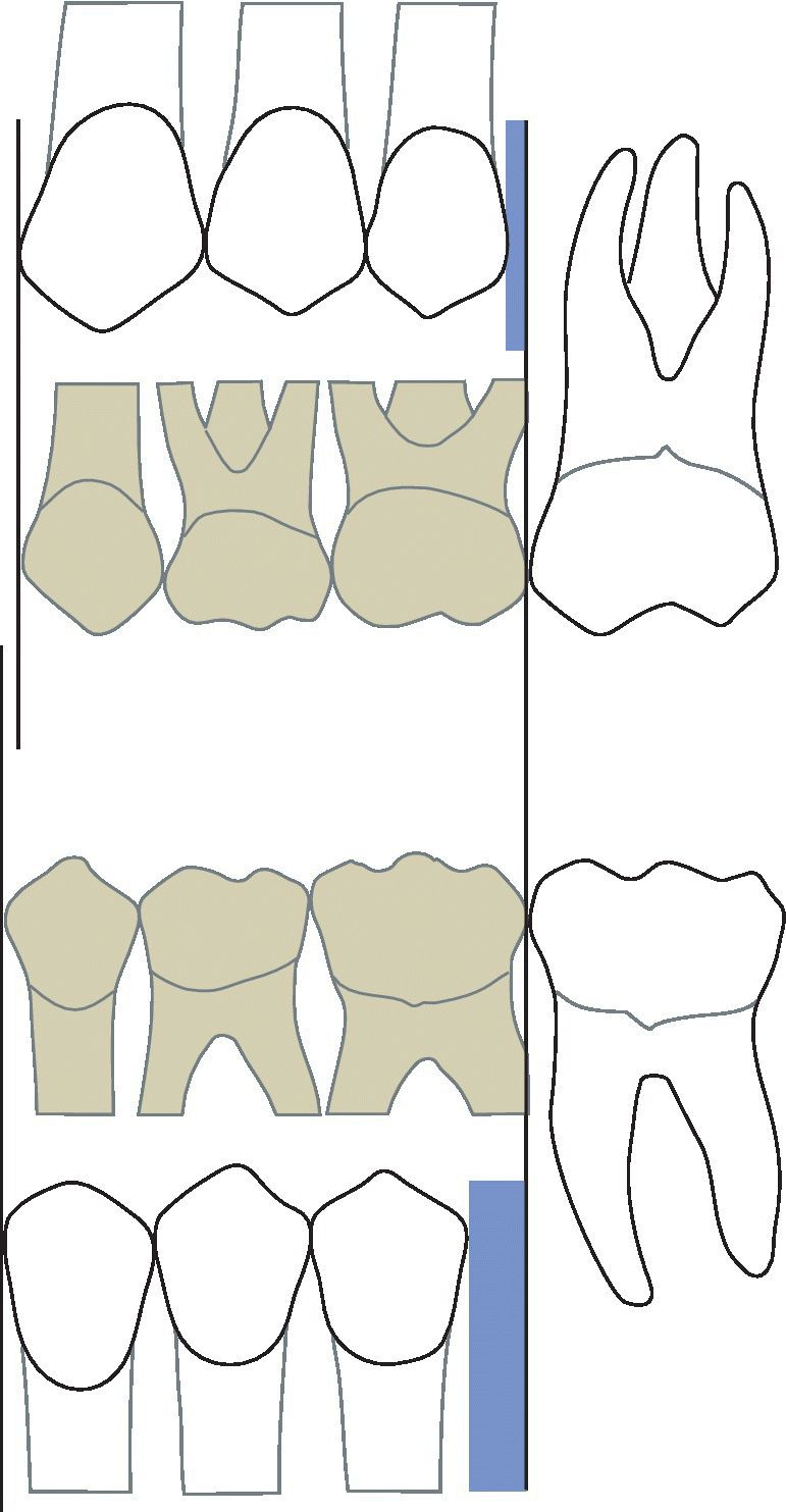 "Illustration of primary canines and molars occupying more space. It displays ""leeway space"" which is greater in the mandible (2.5 mm) than in the maxilla (1.5 mm)."