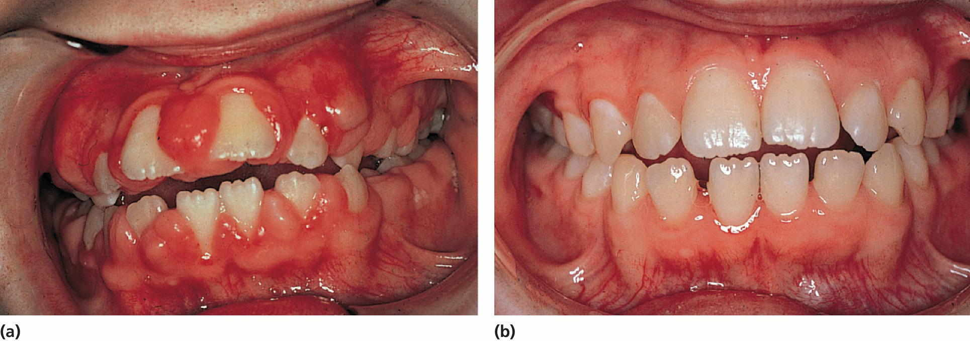 Left: Photo of a 10‐year‐old girl exhibiting severe gingival overgrowth. Right: Photo of a girl at 13 years, exhibiting a normal gingival 1 year after gingivectomy and discontinuation of phenytoin medication.