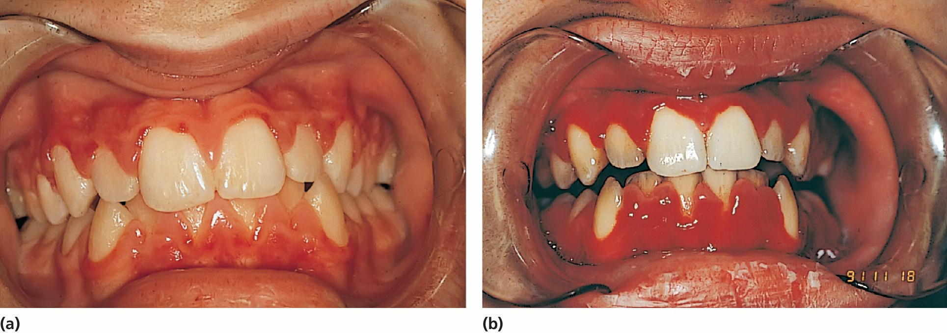 Left: Photo of a 15‐year‐old boy with aplastic anemia prescribed cyclosporine medication. Right: Photo of an 18-year-old boy with deteriorating gingival health coincidental with a hematological crisis.