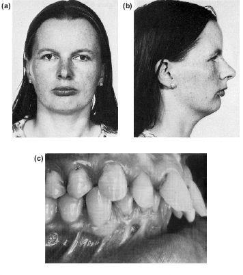 10  The Surgical Correction of Common Deformities Malcolm