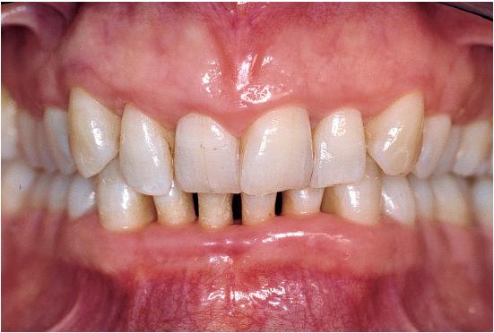 3. Diagnosis of Advanced Periodontitis   Pocket Dentistry  3. Diagnosis of...