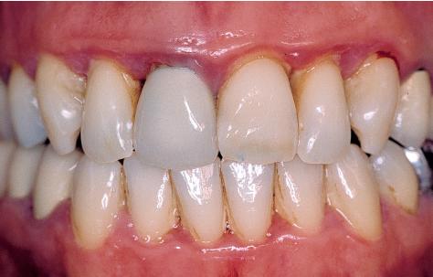 5 Treatment Of Advanced Periodontitis Pocket Dentistry