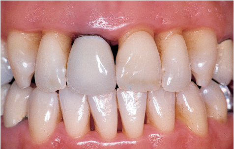 5. Treatment of Advanced Periodontitis | Pocket Dentistry  5. Treatment of...