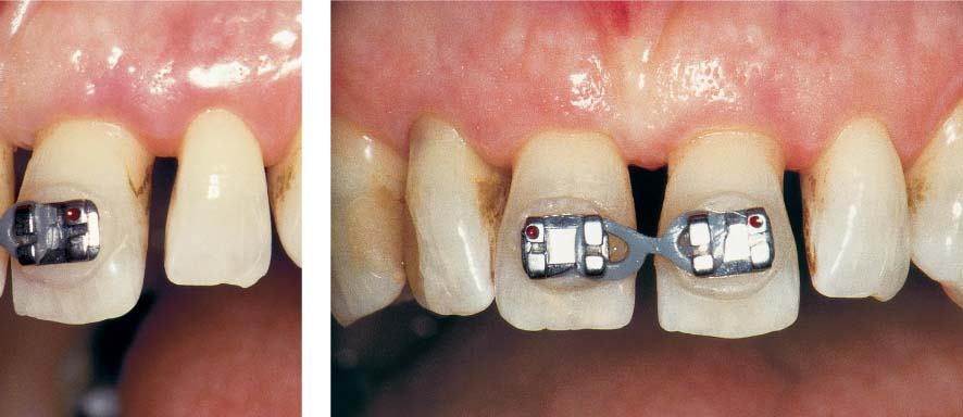 Slight Tooth Movement Orthodontic Tooth Movement