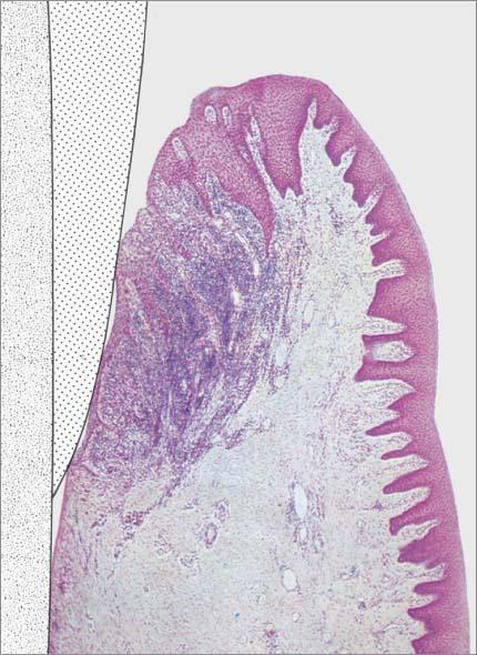 disease entities and diagnosis pocket dentistry