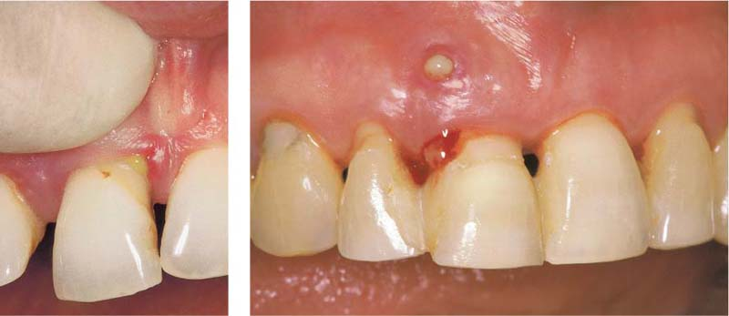 Disease Entities and Diagnosis | Pocket Dentistry