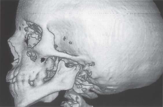 three dimensional analysis of the temporomandibular joint and fossa condyle relationship
