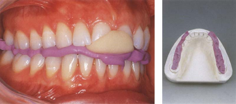 Mounting Of Casts And Occlusal Analysis Pocket Dentistry