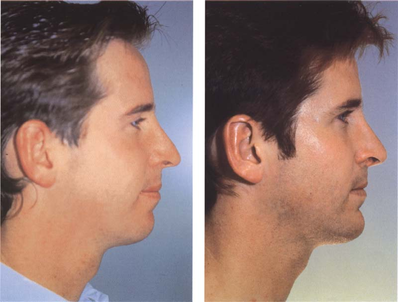 Aesthetic Facial Surgery 50