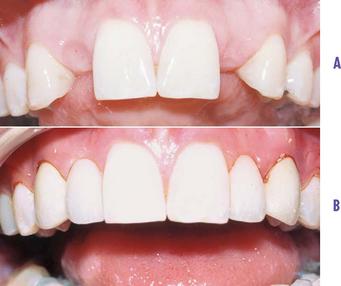 16 Prosthodontics Fixed Crowns Caps Or Bridges