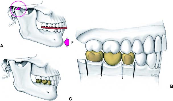 2 16 incorrect centric relation recording a if the mandible is forced backward f the condyles are not in their most superior position but are moved