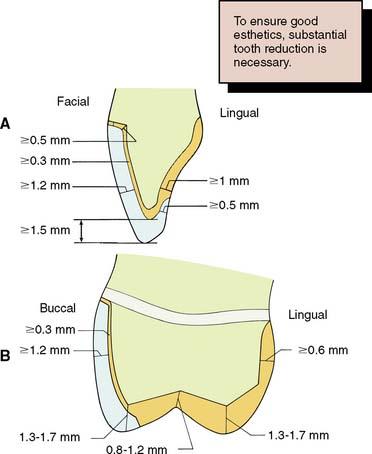 9 The Metal Ceramic Crown Preparation Pocket Dentistry