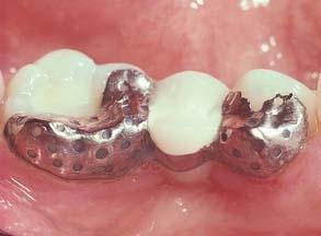 26: RESIN-BONDED FIXED DENTAL PROSTHESES | Pocket Dentistry