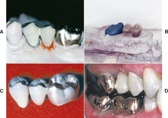 tarnish and corrosion in dentistry pdf