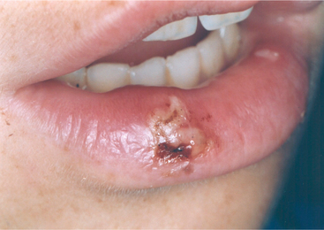 how to heal a lip hit by a puck
