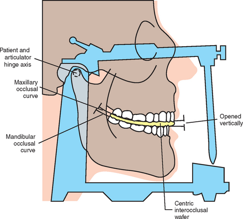 figure 13 2 diagnostic casts should be mounted with an open bite registration in centric relation when the registration material between the teeth is