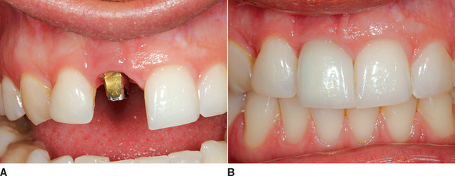 33: Anterior Single-Tooth Replacement: Surgical Considerations ...