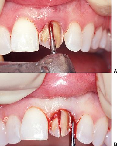 37 Tooth Extraction Socket Grafting And Barrier Membrane Bone Regeneration Pocket Dentistry