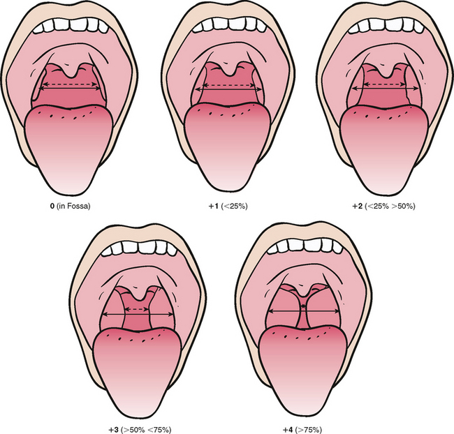Pictures Of Enlarged Tonsils Grading Kidskunstinfo