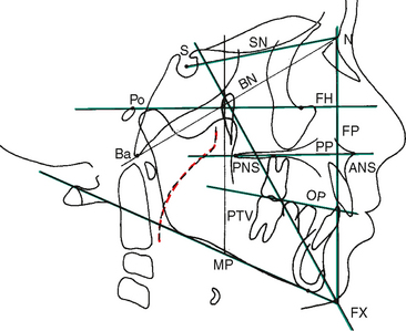 cephalometrics and facial esthetics the key to complete  figure 26 9 cephalometric reference lines and planes