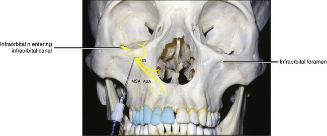 11: Applied Anatomy   Pocket Dentistry