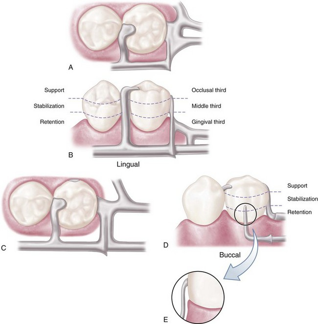 equipoise removable partial denture
