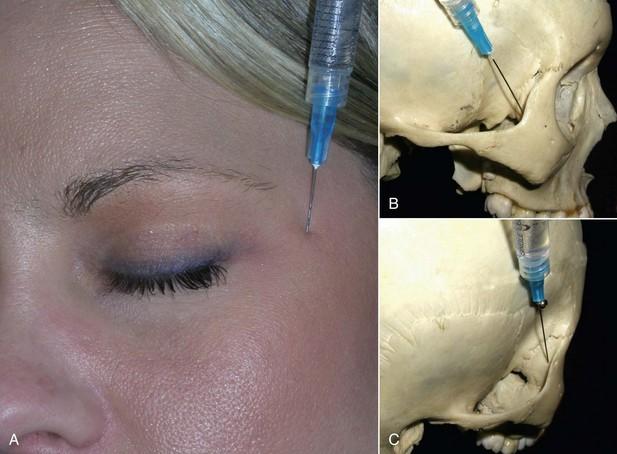 Zygomaticotemporal Foramen 4: Anesthesia Consider...