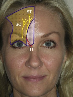 4: Anesthesia Considerations for Cosmetic Facial Surgery ...