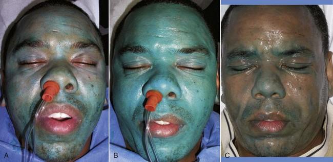 12 Skin Resurfacing Pocket Dentistry