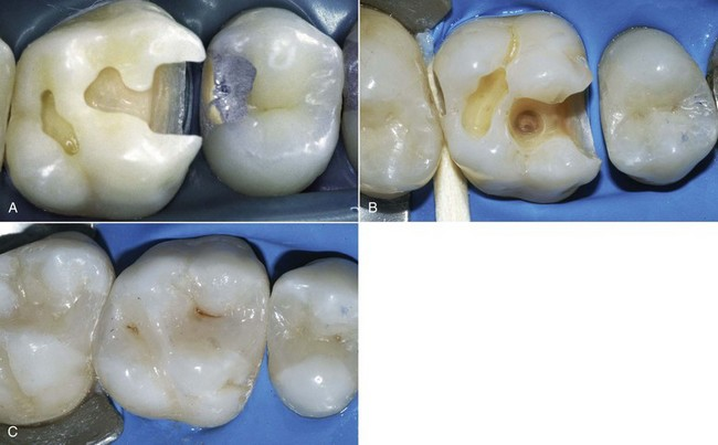 research paper dental amalgam Dental amalgam and other restorative  mixing proportions: 575% alloy, 425 % mercury silver  †mcgraw-hill dictionary of scientific and technical terms.