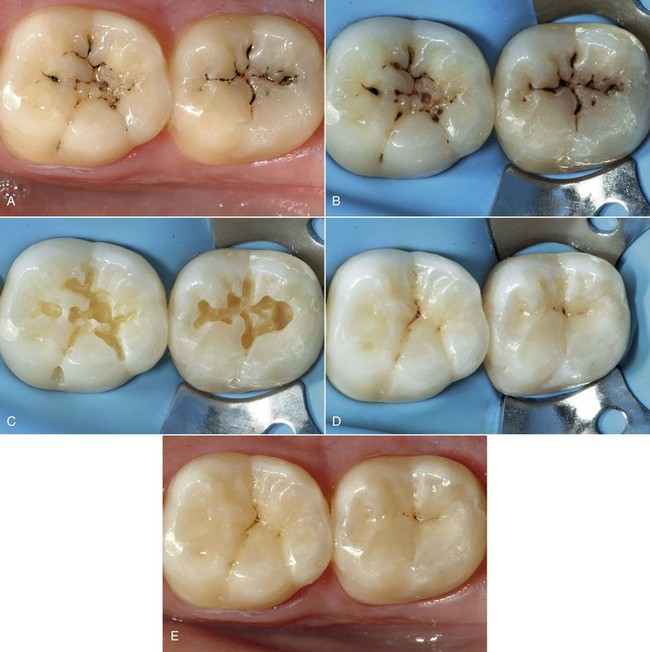 9: Direct Composite Restorations | Pocket Dentistry