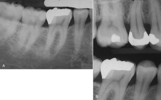 11 Indirect Restorations In The Posterior Quadrants
