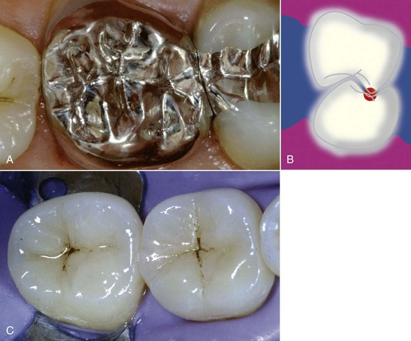 16 Occlusal Aspects In Restorative Dentistry