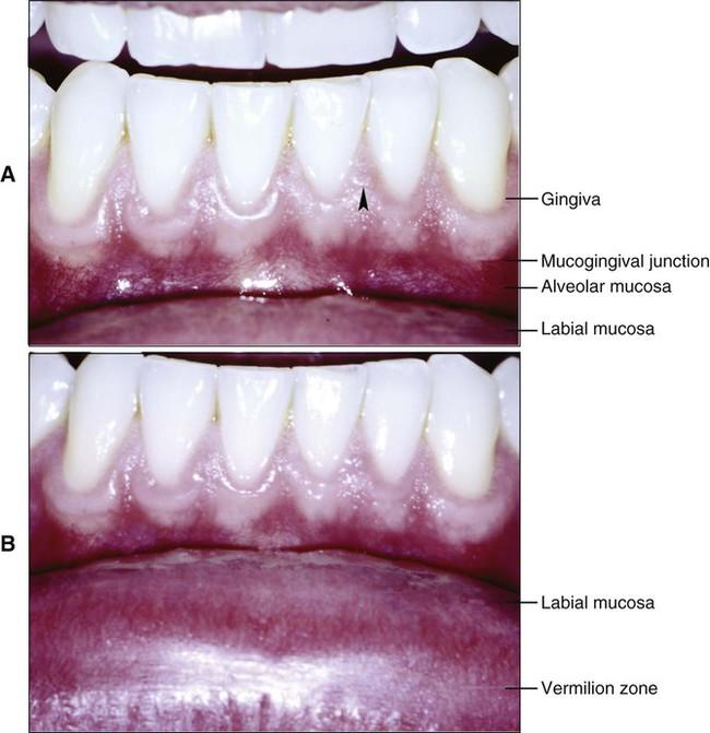 12: Oral Mucosa | Pocket Dentistry