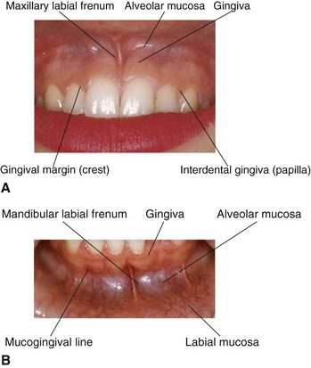 5 Clinical Oral Structures Dental Anatomy And Root Morphology