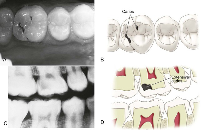 thesis dental caries A thesis submitted to the faculty of the university of north carolina at chapel hill in dental caries is the most prevalent chronic disease of childhood in the united.