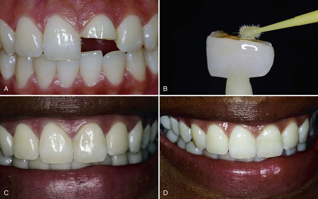 4 Fundamental Concepts Of Enamel And Dentin Adhesion