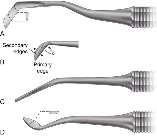 6: Instruments and Equipment for Tooth Preparation | Pocket