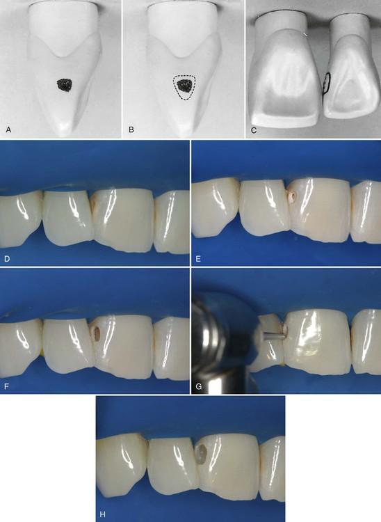 class iii cavity preparation facial access