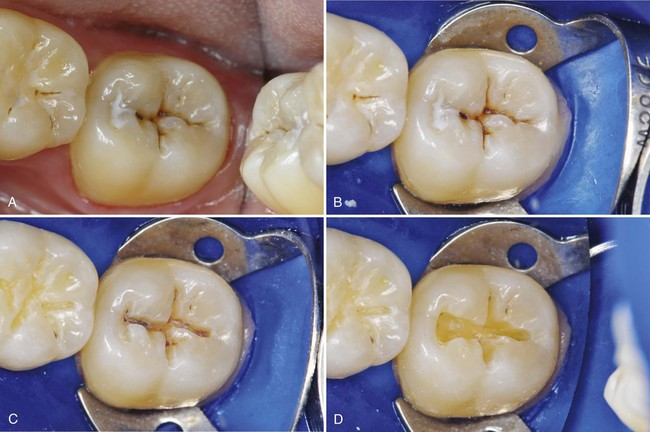 10 Class I Ii And Vi Direct Composite Restorations And