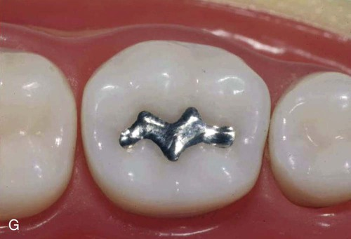 14: Class I, II, and VI Amalgam Restorations | Pocket Dentistry