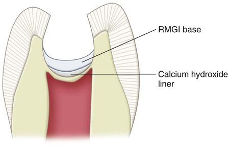optimizing preparation of modified calcium oxide