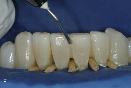 21 Bonded Splints And Bridges Pocket Dentistry