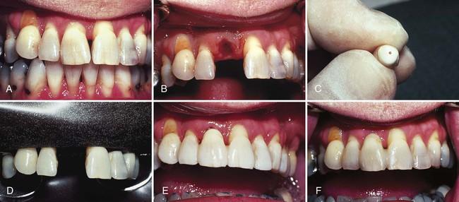 21 Bonded Splints And Bridges Pocket Dentistry