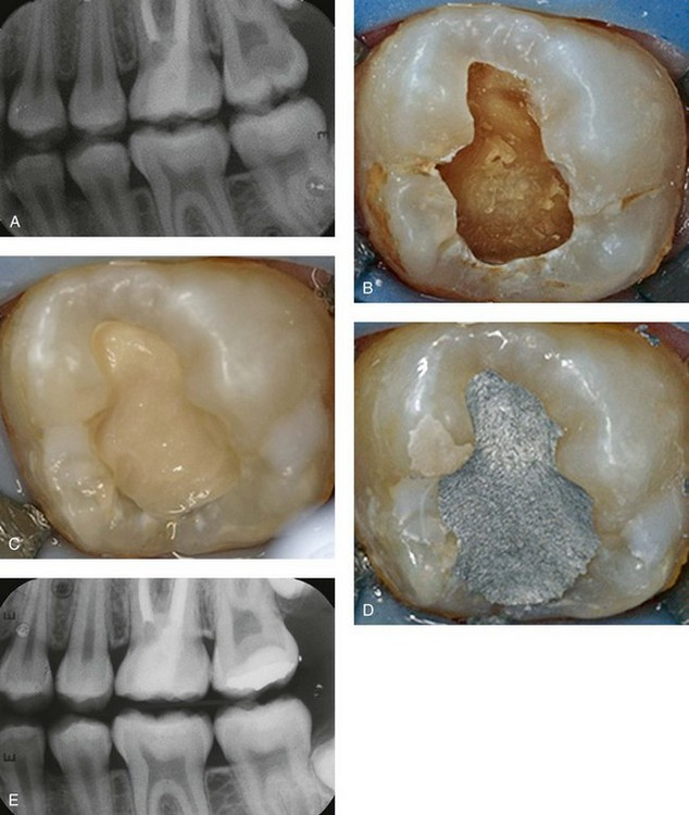 33 Pulp Therapy For The Young Permanent Dentition