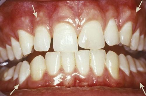 1: Anatomy of the Periodontium   Pocket Dentistry