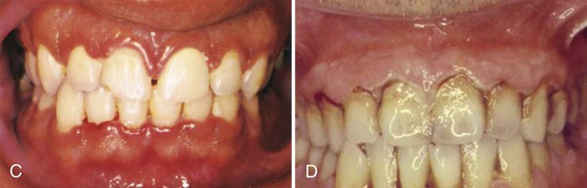 17: Acute Gingival Infections | Pocket Dentistry
